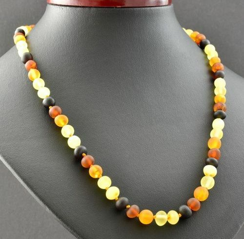 Amber Necklace Made of Matte Healing Baltic Amber